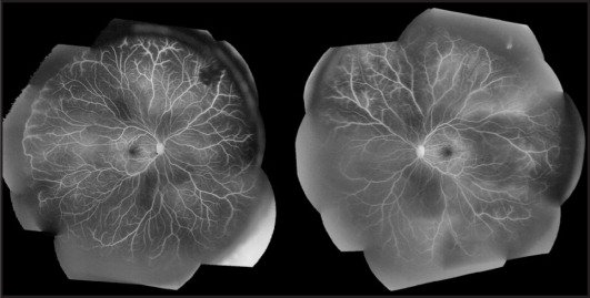 Montage fluorescein angiogram images. (Left) Fluorescein angiogram of the right eye demonstrating peripheral, non-perfused retina bordered posteriorly by anastomotic vessels running parallel to the ora serrata; superonasal blocking defect caused by vitreous hemorrhage. (Right) Peripheral, non-perfused retina bordered posteriorly by vessels running parallel to the ora serrata in the left eye.