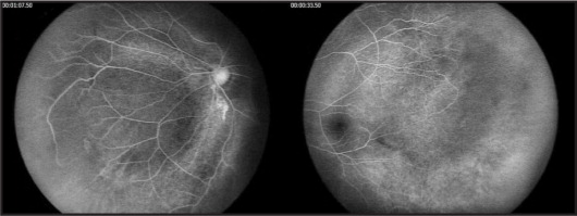 Left eye fluorescein angiogram demonstrating abnormal central and peripheral vascular patterns with peripheral, non-perfused retina bordered posteriorly by vessels running parallel to the ora serrata.