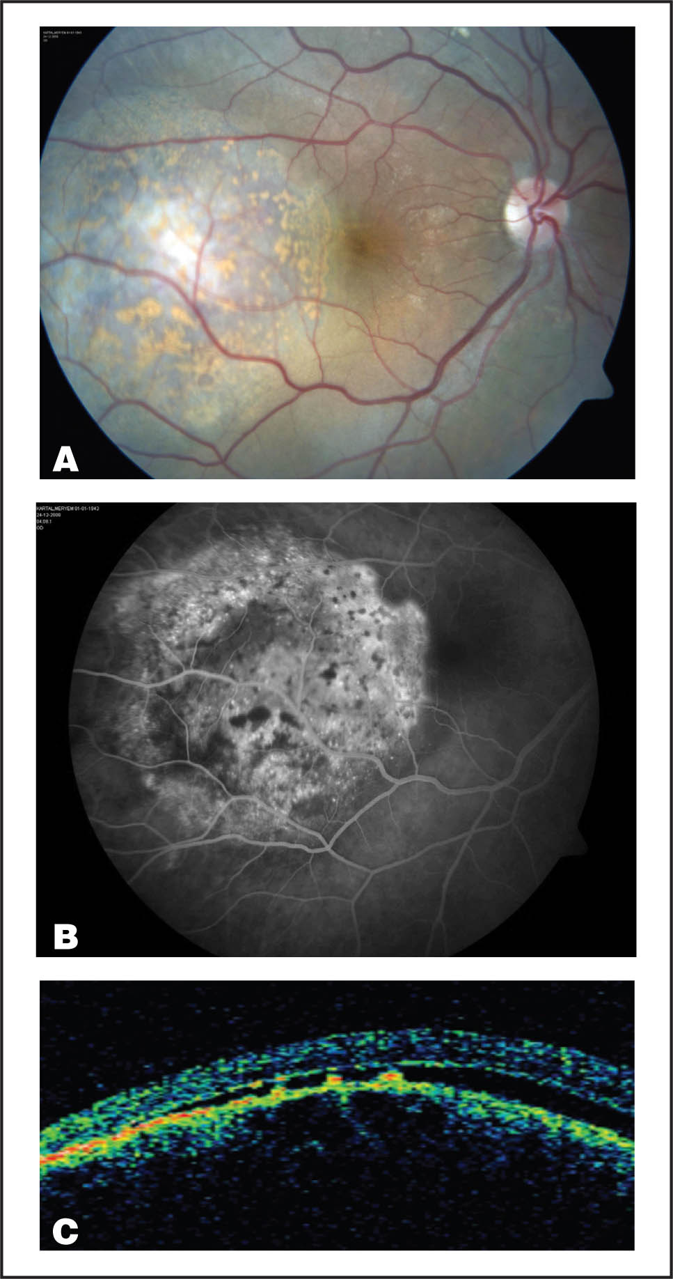 (A) Right Fundus View Showing the Choroidal Melanocytic Lesion with Large Amounts of Orange Pigment. (B) Late Phase Fluorescein Angiography Demonstrates Small, Confluent Areas of Hyperfluorescence Corresponding to Transmission Defects. (C) Optical Coherence Tomography Reveals Local Retinal Pigment Epithelial Loss over the Melanocytic Lesion and Collections of Material with Subretinal Fluid.