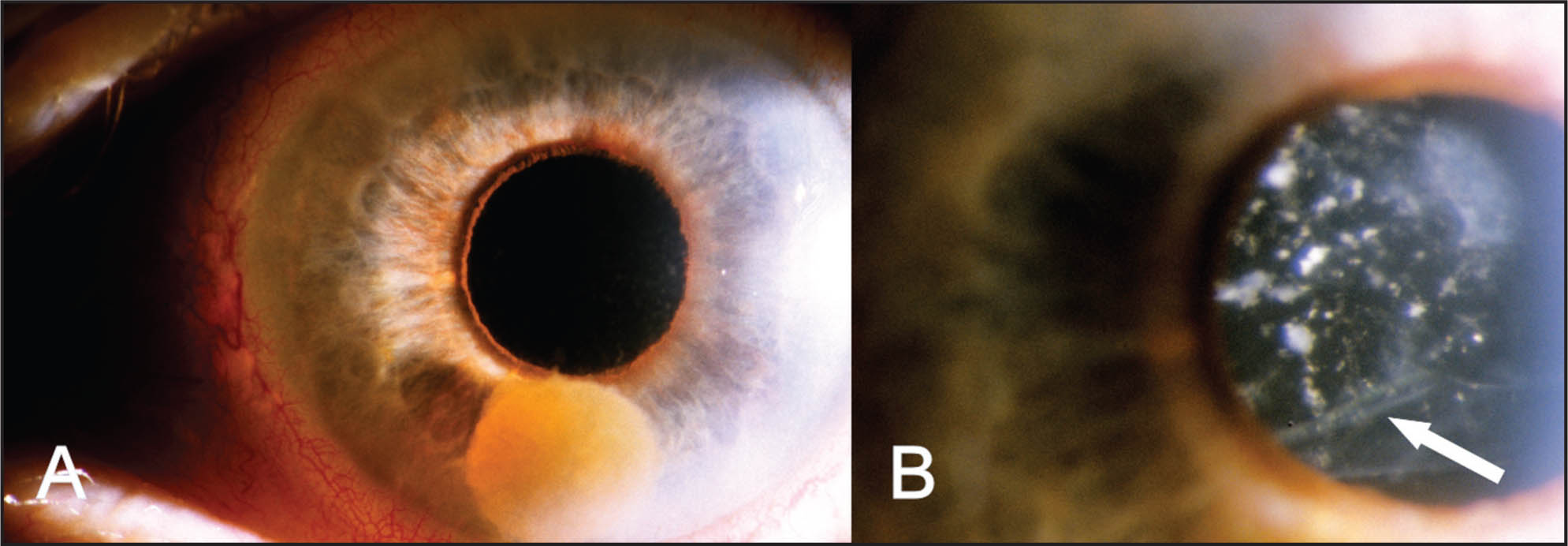 (A) Nucleus of Morgagnian Cataract Dislocated into the Anterior Chamber. (B) Tear in the Anterior Lens Capsule (arrow).