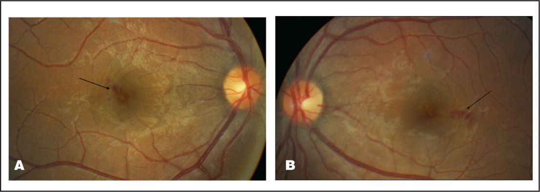 (A) Fundus photograph showing small intraretinal macular hemorrhages in the right eye. (B) Fundus photograph showing small intraretinal macular hemorrhages in the left eye.