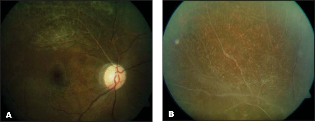Healed cytomegalovirus retinitis involving (A) posterior pole and (B) superior retina. There was no involvement of any other quadrant.