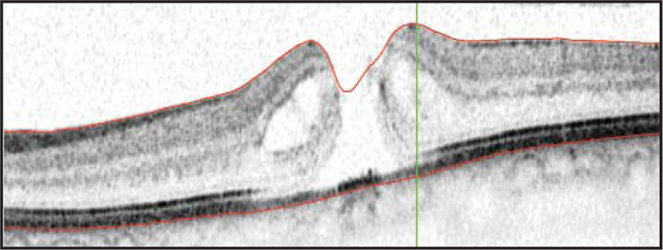 Full-thickness chronic macular hole depicted on optical coherence tomography.