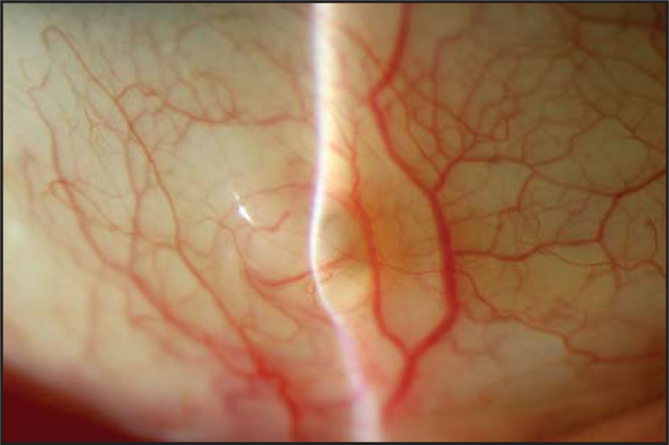 Slit-lamp photograph of the lesion showing an elevated semi-translucent episcleral nodule.