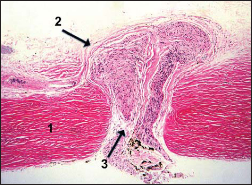Hematoxylin–eosin staining of a histopathologic section of an Axenfeld loop demonstrating surrounding anatomy corresponding to findings in Figure 2: 1 = sclera; 2 = conjunctiva; 3 = Axenfeld loop (original magnification × 100) (photograph courtesy of Dr. Tatyana Milman).