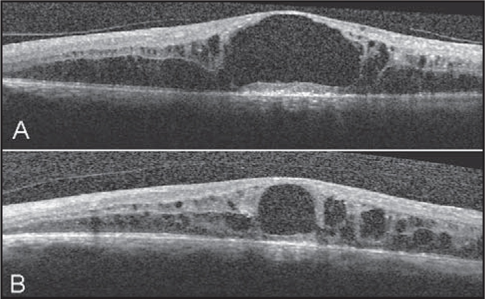(A) Optical coherence tomography (OCT) scan showing cystoid macular edema with a large central cystoid cavity 1 month before intravitreal bevacizumab injection. (B) OCT scan obtained 3 months prior to the development of lamellar macular hole demonstrating cystoid macular edema and posterior hyaloid membrane detachment.