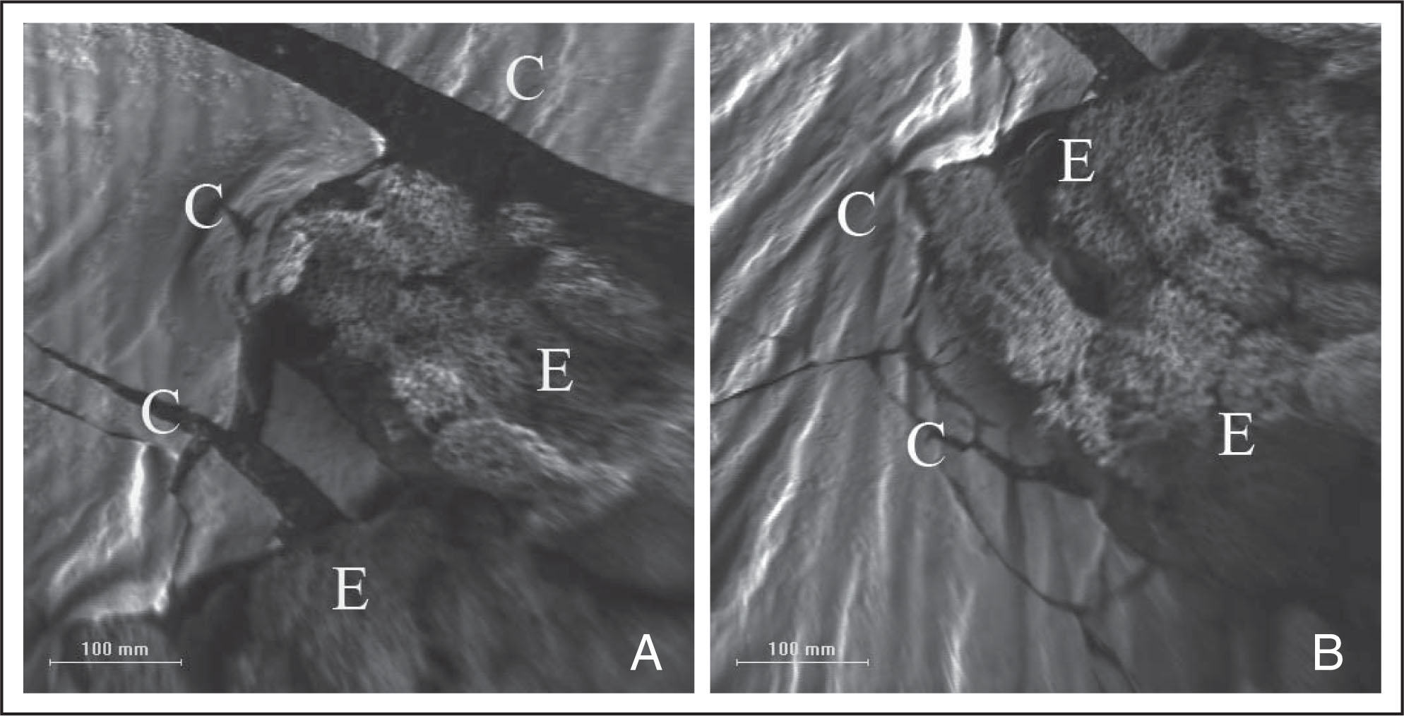 Scanning electron micrographs showing the islands of the remaining lens epithelial cells (E) on the posterior surface of the residual anterior lens capsule (C) in the (A) silicone oil tamponade group and (B) control group.
