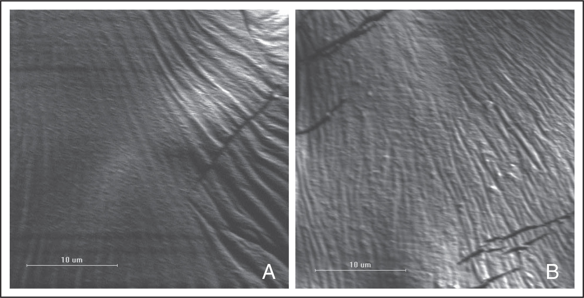 Scanning electron micrographs showing the ultrastructurally normal anterior lens capsular surface in the control group.