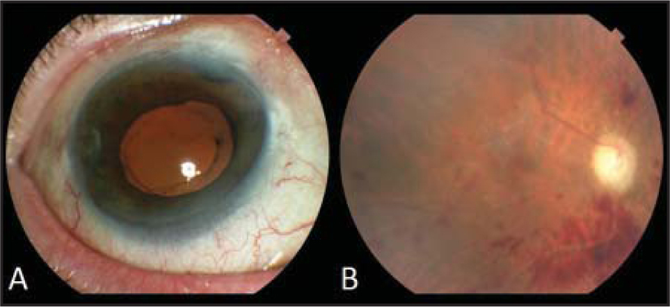 (A) Slit-lamp photograph demonstrating apparent resolution of conjunctival injection and anterior segment inflammation after the first pars plana vitrectomy. (B) Fundus photograph 2 months after initial pars plana injection demonstrating optic nerve pallor, sclerotic vessels, and intraretinal hemorrhages with a clear vitreous.