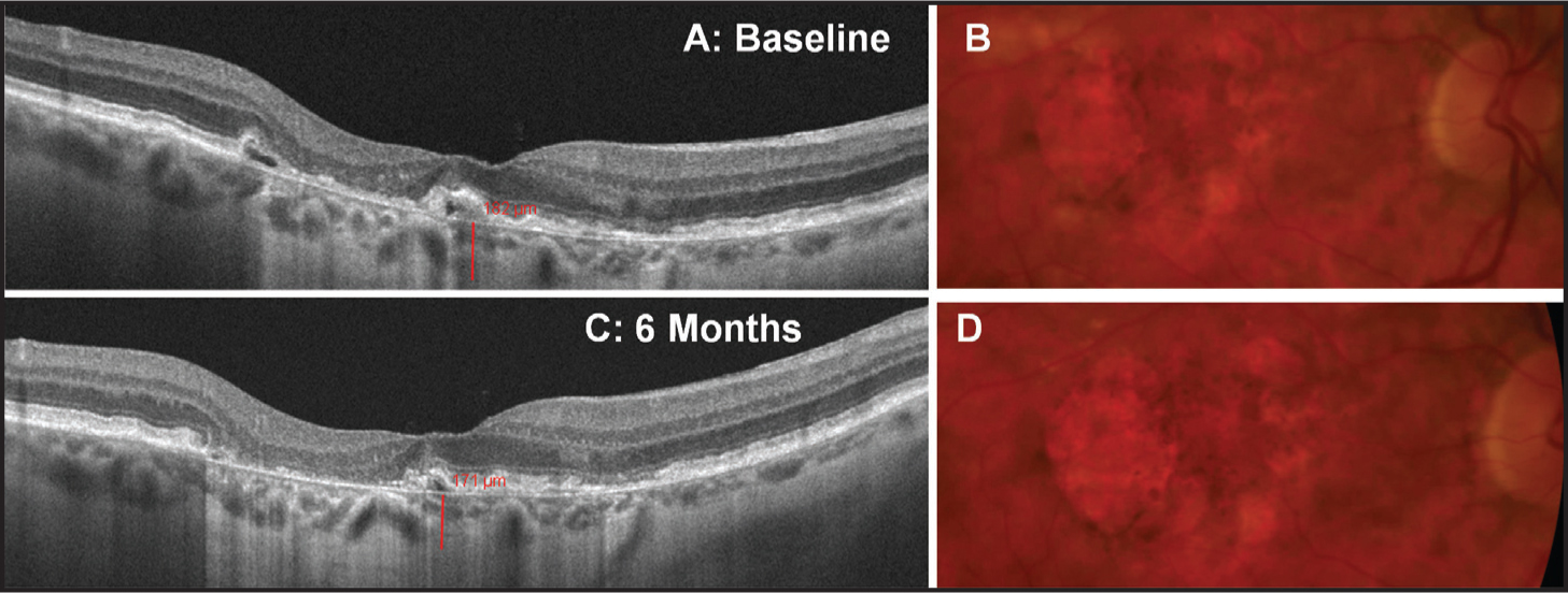 Choroidal thickness in a patient with dry AMD. High-definition Cirrus one-line raster scans (A, C) and color fundus photographs (B, D) from a patient with a history of dry AMD over 6 months.