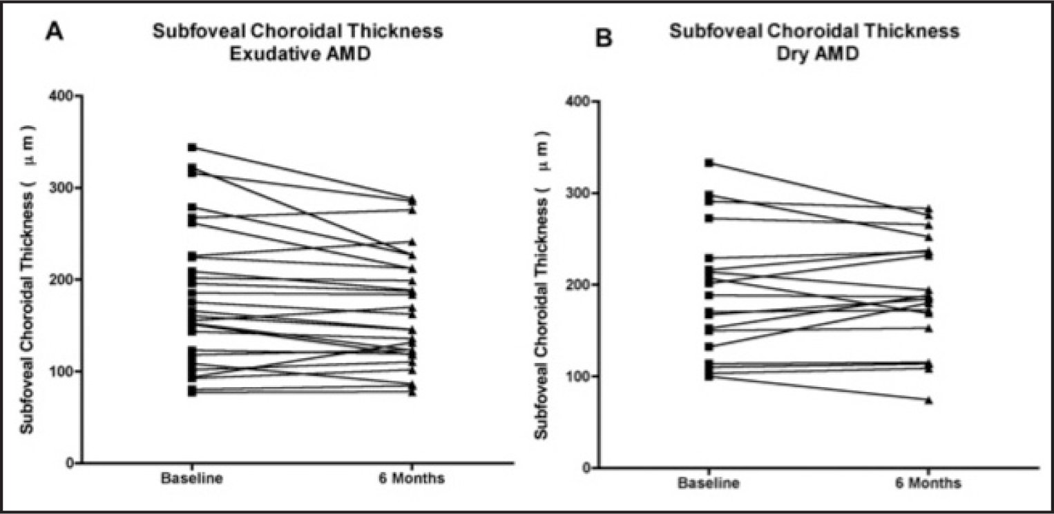 Scatter plot of the change in subfoveal choroidal thickness between baseline and 6 months in neovascular AMD (A) and dry AMD (B) subgroups.