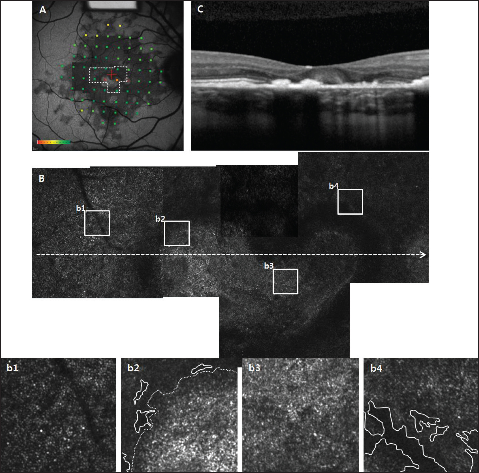 (A) A montage of adaptive optics scanning laser ophthalmoscopy images from the right eye is superimposed on the fundus autofluorescence image with MP1 sensitivities. (B) Enlarged composite adaptive optics scanning laser ophthalmoscopy images of the regions outlined with a dashed white line in A reveal hyperreflective regions with dark annuli. (b1–b4) Higher-magnification views of the boxed regions of the larger montage images in A. (b1) A nearly continuous and regular cone mosaic pattern. (b2–b4) Dark areas devoid of normal wave-guiding cones and highly reflective regions are observed in the magnified image. (C) Spectral-domain optical coherence tomography at the point indicated by white dashed line in B, demonstrating dark areas correlate with the absence of an inner/outer segment junction and hyperreflective regions consistent with the dome-shaped hyperreflective deposit. The area with disrupted and/or abnormal cells in b2 is depicted by a white dashed line, and the left side of the white dashed line shows a less compact distribution of cones including dark lesions which are indicated by white lines. Through the comparison with other images, b3 may only include the disrupted and/or abnormal cells. Typical dark lesions in b2 and b4 are indicated by white lines.
