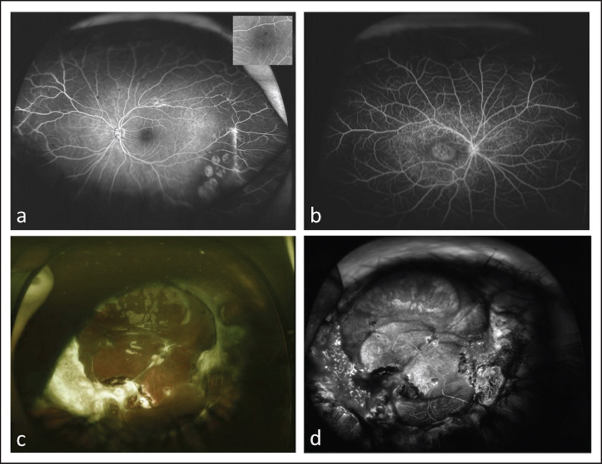 (A) Angiogram of X-linked retinoschisis with macular stippling (inset) and peripheral hyperfluorescence at the edge of the schisis cavity in patient 10. (B) Angiogram of Stargardt disease with macular atrophy (inset), a silent choroid, and staining of flecks in the posterior pole in patient 11. (C) Color fundus photograph of an eye after trauma with silicone oil and proliferative vitreoretinopathy in patient 11. Note the nose and iris artifact in the temporal fundus. (D) Angiogram highlighting the extent of scarring and severity of injury in patient 12.