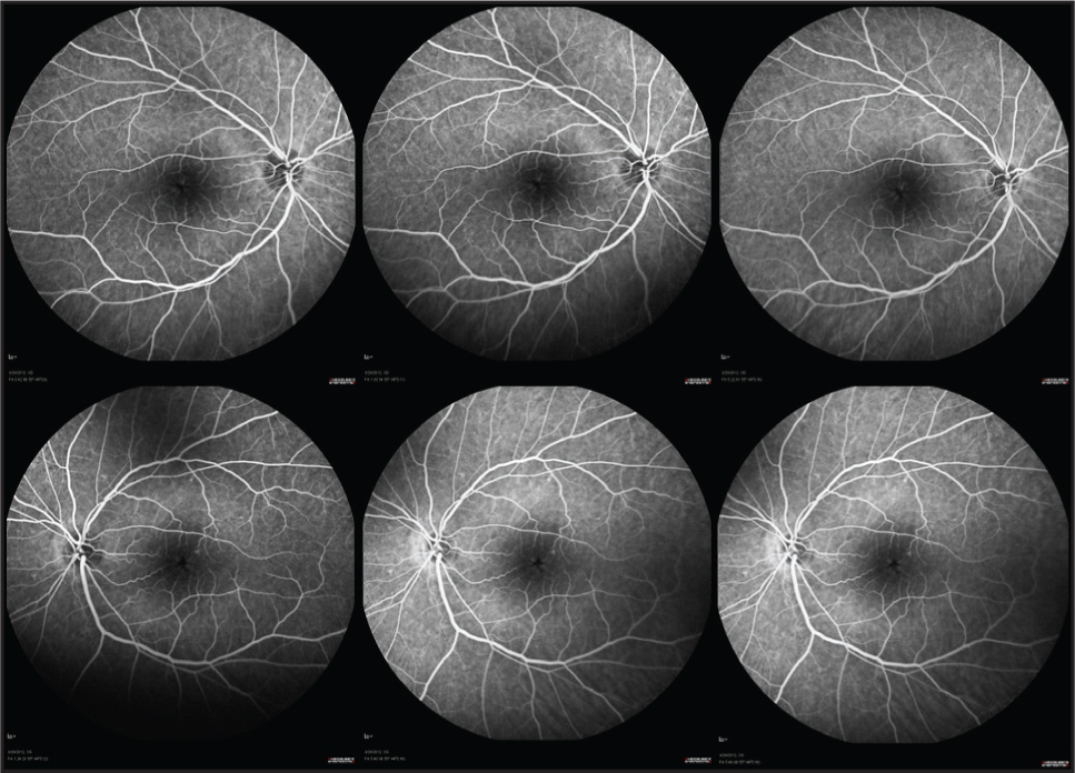 Fluorescein angiography reveals normal vascular filling and no evidence of leakage in the early, mid, or late phases in both eyes.
