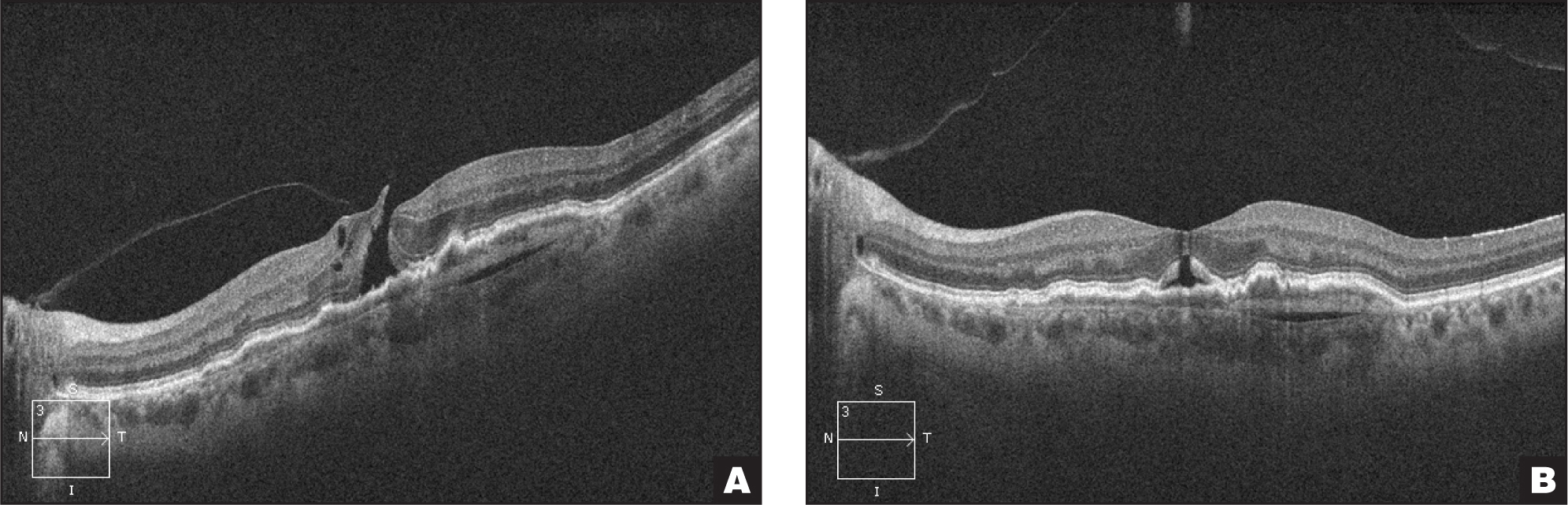 (A) Micro-full-thickness macular hole due to focal adhesion seen here in the setting of dry macular degeneration treated with ocriplasmin, (B) showing late anatomic improvement at day 42.