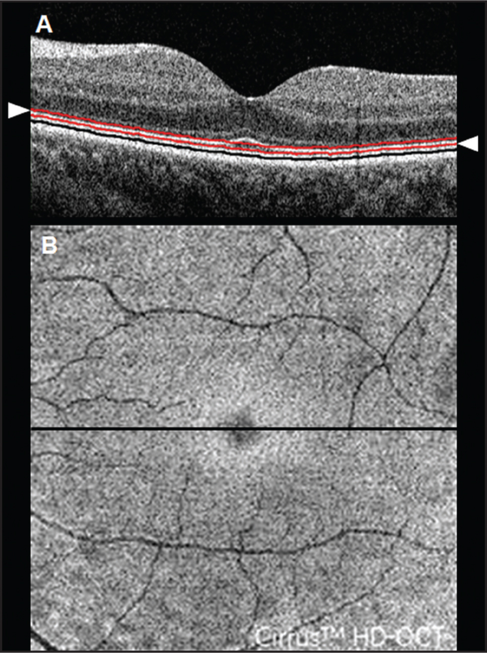 Spectral-domain optical coherence tomography outer retinal slab en face imaging of a healthy retina in a 52-year-old woman. (A) A horizontal B-scan through the foveal center showing the black line segmenting the retinal pigment epithelium (RPE) and the red lines showing the outer and inner segmentation lines (arrowheads) used to generate the en face shown in B. The outer segmentation line is located 20 μm above the RPE, and the inner segmentation line is positioned 20 μm above the outer segmentation line. (B) The outer retinal slab en face image generated from the boundary lines described in A. The horizontal line on the en face image corresponds to the B-scan shown in A.