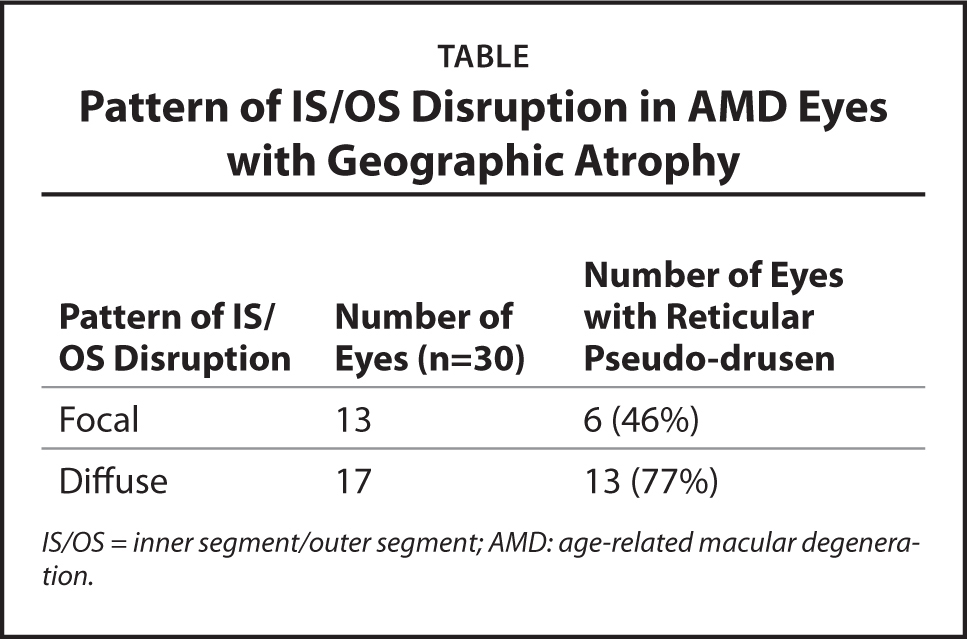 Pattern of IS/OS Disruption in AMD Eyes with Geographic Atrophy