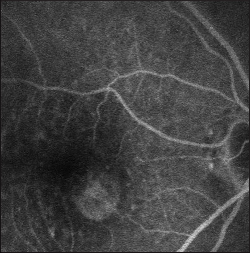 Fluorescein angiogram of the right eye in case 1 showing hyperfluorescence due to retinal pigment epithelial changes.