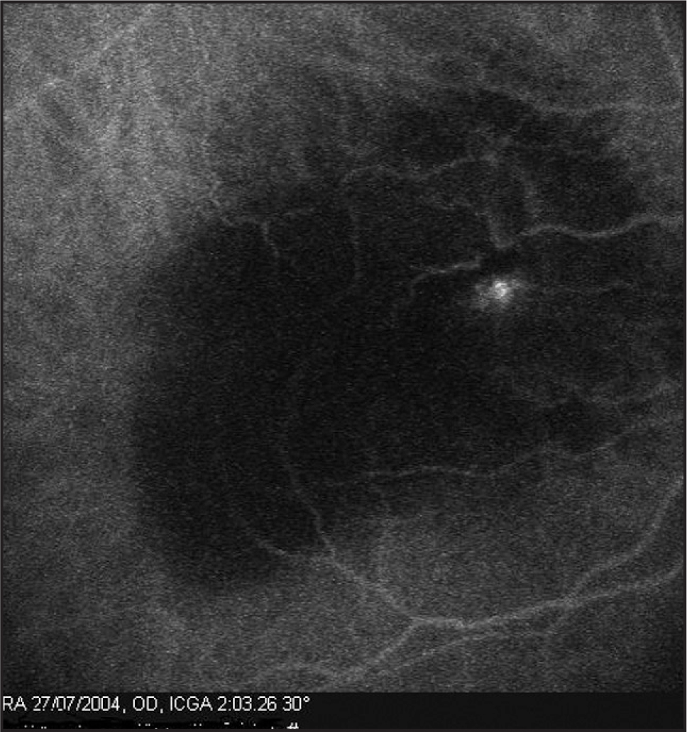 Indocyanine green angiogram of the right eye in case 2 demonstrating a stage 3 focal retinal angiomatous proliferation.