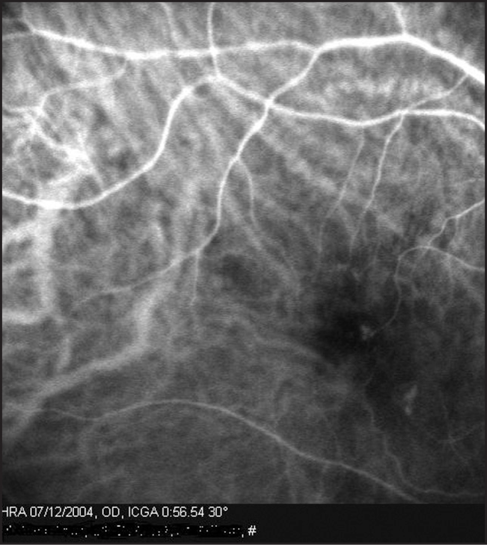 Indocyanine green angiogram of the right eye in case 3 revealed a stage 2 complex retinal angiomatous proliferation with two separate lesions.