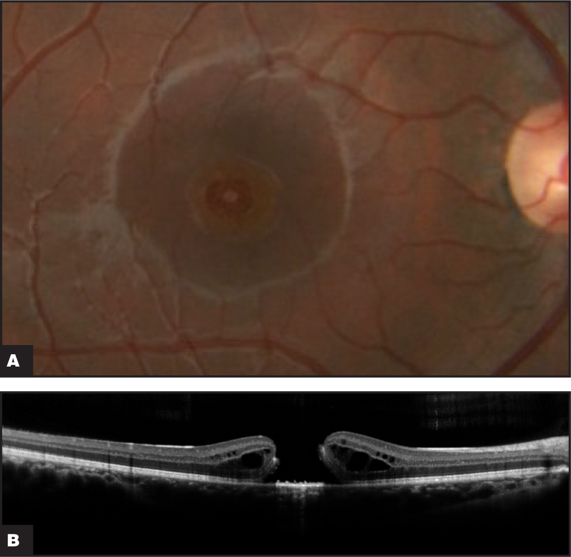 (A) Fundus photograph of the right eye 3 months after initial laser exposure demonstrating a full-thickness macular hole. (B) Spectral-domain OCT of the right eye with cross-section through the fovea demonstrating a full-thickness macular hole and adjacent intraretinal cystic changes.