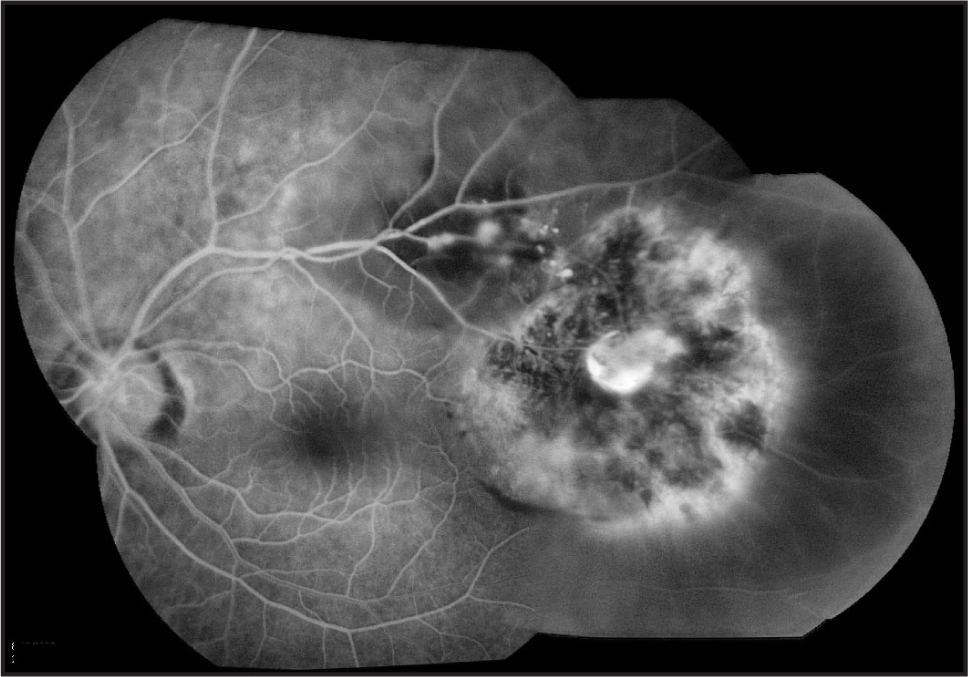 Fluorescein angiography demonstrates vascular dilatations along the superotemporal arcade and staining of the fibrous tissue temporally. There is an area of window defect surrounding the fibrous tissue.