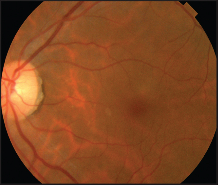 Fundus photograph of the left eye at 1-month follow-up reveals complete disappearance of the nematode.