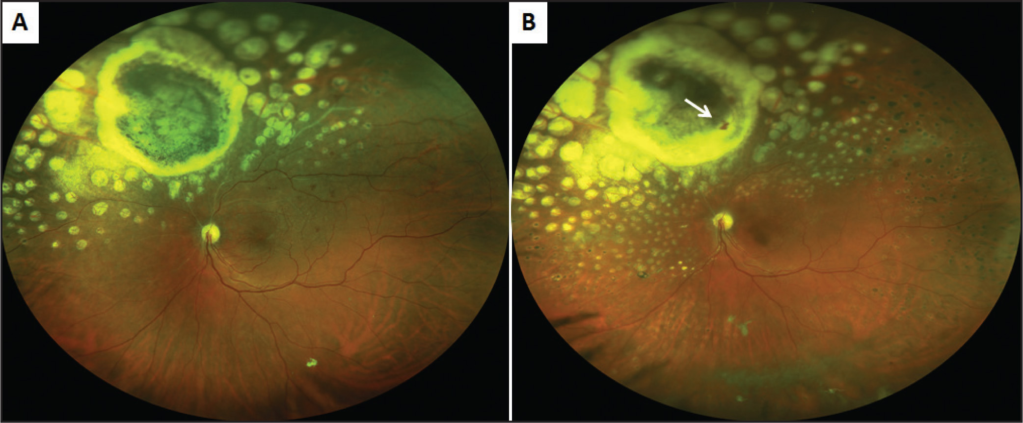 Ultrawide-field color fundus photographs of the left eye. (A) Color fundus photograph taken 3 years prior to presentation showing the regressed choroidal melanoma with chorioretinal scarring superonasal to the optic nerve. There is no neovascularization within the scar. Sectoral panretinal photocoagulation scars extend slightly beyond the superonasal quadrant. (B) Color fundus photograph taken at presentation showing visible new vessels (white arrow) within the site of the regressed choroidal melanoma, with chorioretinal scarring superonasal to the optic nerve. There are panretinal photocoagulation scars throughout the posterior pole in all quadrants, and dehemoglobinised vitreous hemorrhage is visible in the inferior vitreous cavity.