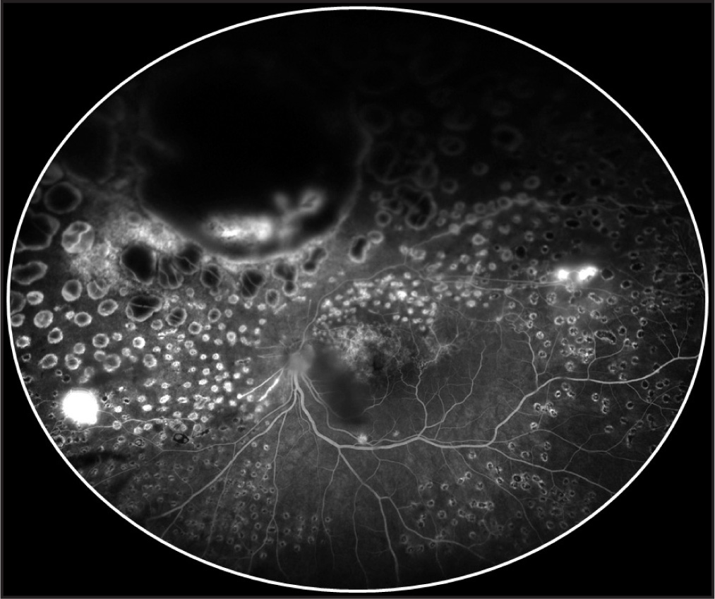 Late-phase ultrawide-field fluorescein angiography of the left eye taken at presentation, showing leakage from the polypoidal choroidal neovasculopathic vessels. There are also areas of leakage seen in the peripheral temporal and nasal retina.
