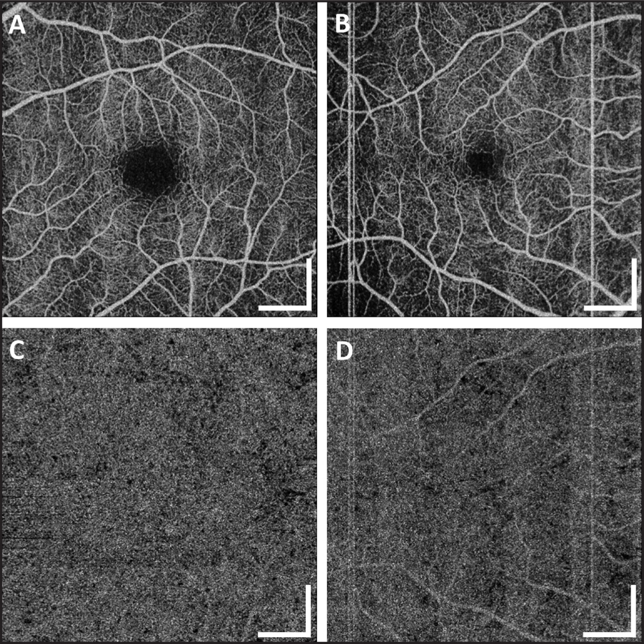 (A, C) OCT angiograms of a 35-year-old healthy participant. (B, D) OCT angiograms of a 68-year-old healthy participant. (A, B) OCT retinal angiograms over a 6 mm × 6 mm area centered at the fovea. (C, D) OCT choriocapillaris angiograms over the same 6 mm × 6 mm area extracted from the same volumetric scans as used in A and B. Note that the thick retinal vasculature casts angiographic shadows onto the choriocapillaris angiogram. Scale bars: 1 mm.