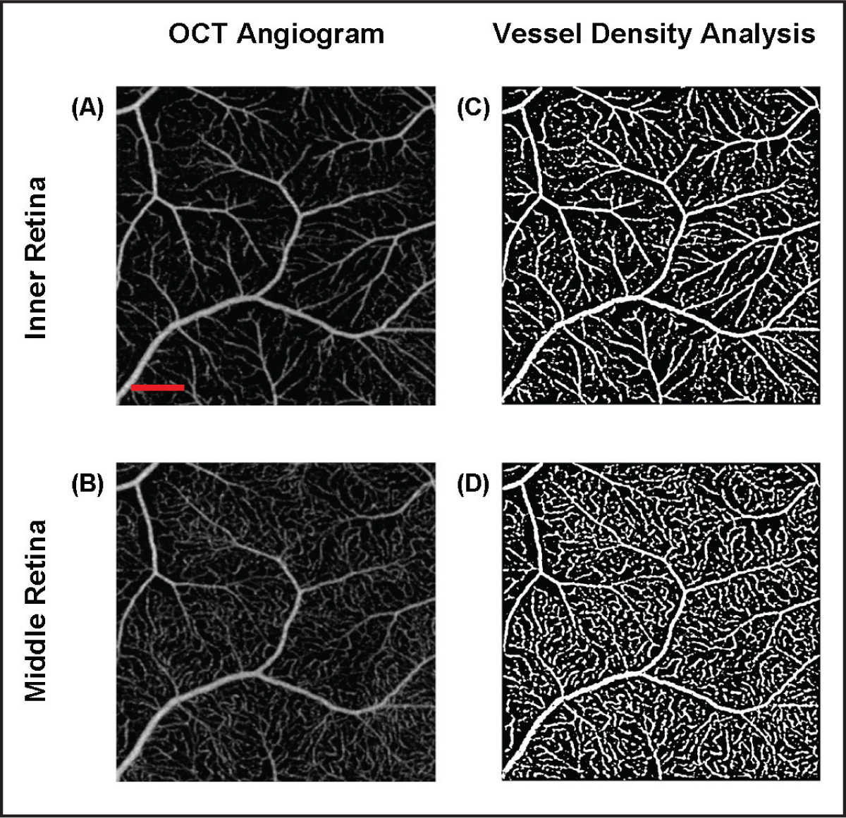 OCT angiogram and vessel density analysis of a 3 × 3 mm2 area in the temporal macula region of a healthy subject. En face representation of the retinal vessels in the (A) inner retinal layer shows a qualitatively lower vascular density than either the foveal or peripapillary areas in previous figures. En face representation of the retinal vessels in the (B) middle retinal layer show a more discontinuous, lattice-like arrangement of vessel segments. (C,D) Contrast enhanced images of the respective retinal regions in (A) and (B). Vessel density analysis of the inner retina showed an average total density of 22.58 ± 1.66. Vessel density analysis of the middle retina showed an average total density of 28.21 ± 2.04. The scale bar in (A) shows a distance of 500 µm. This scale applies to (A–D).