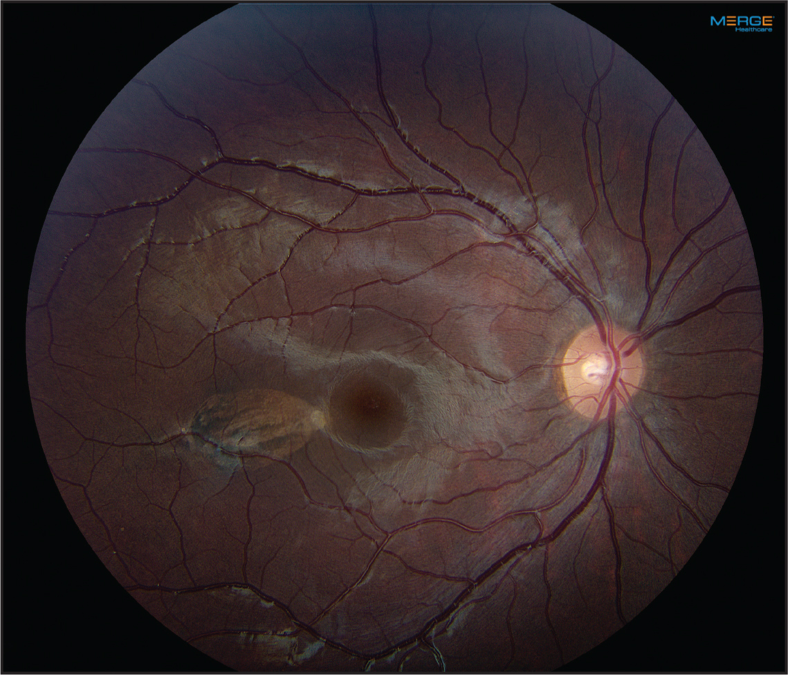Torpedo maculopathy, right eye. Color fundus photography. Note flat, variably pigmented lesion temporal to center of macula.