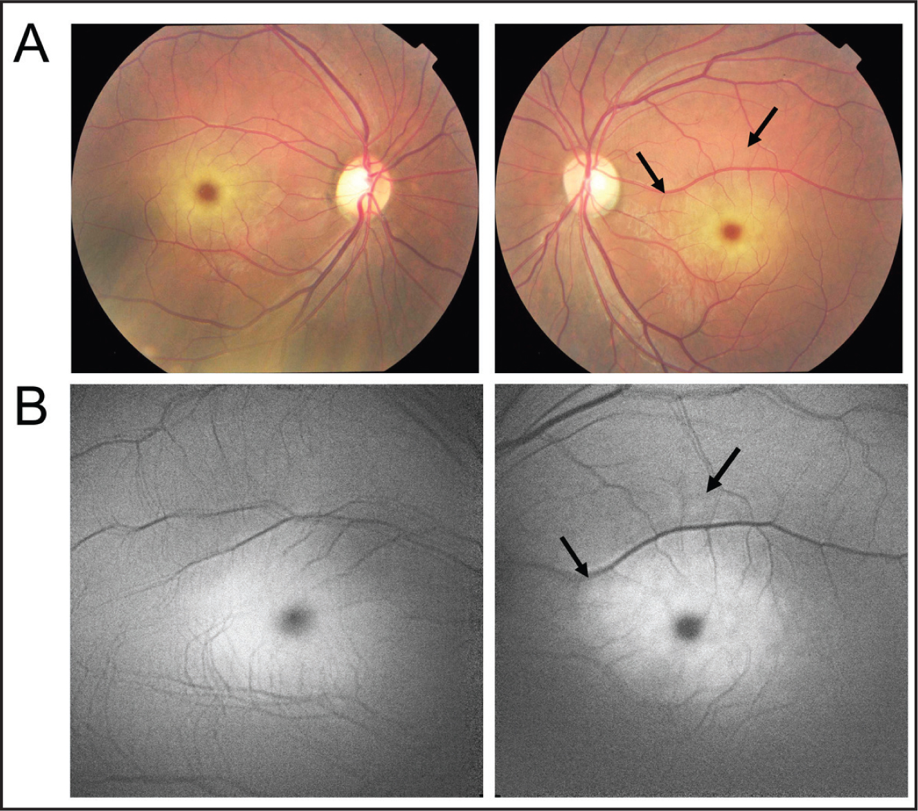 Fundus photographs and fundus autofluorescence (FAF) images. (A) Fundus photographs showing cherry-red spot in both maculas. (B) FAF images showing abnormal hyper-autofluorescence in the macula. The lesion seen in the FAF has expanded over that seen in the fundus photograph (arrows).