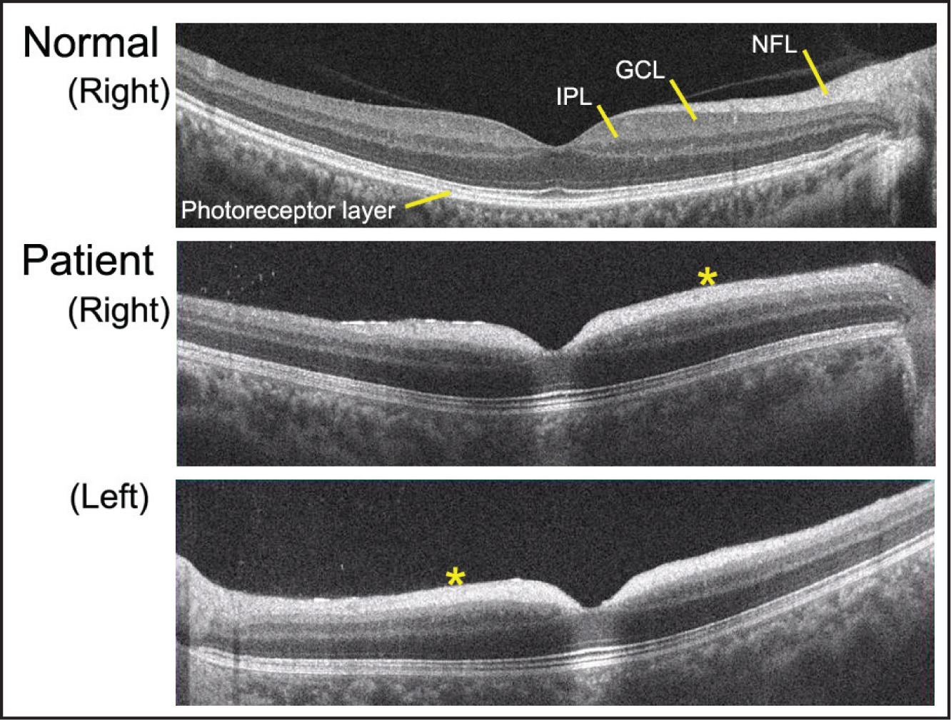 Optical coherence tomography (OCT) of a normal subject and a patient with galactosialidosis. The retinal ganglion cell layer (GCL) appears hyperreflective in the macula, and the boundary between the nerve fiber layer (NFL) and the GCL is unclear (asterisk). IPL = inner plexiform layer.