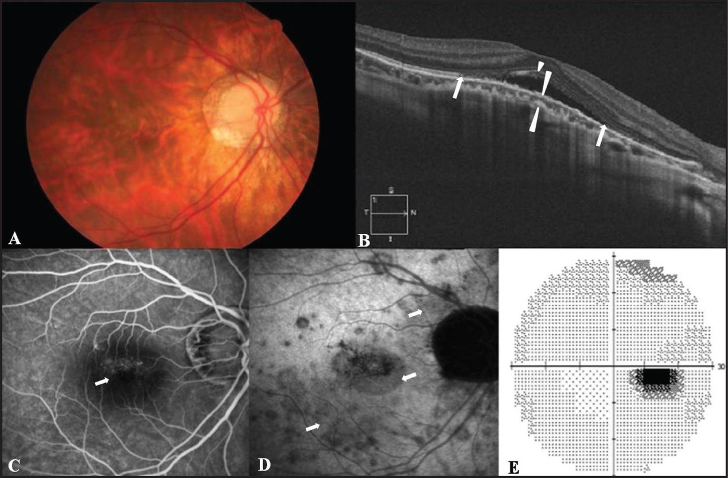 (A) Fundus photograph at presentation showing multiple white dots around the macula and a myopic crescent. (B) OCT scan revealing shallow serous retinal detachment (arrowhead) at the top of the macular bulge with loss of inner segment/outer segment line of photoreceptors (between the arrows) and a thin choroid (111 μm) at the upper border of the macular bulge (between long arrowheads). (C) Fluorescein angiography showing increased transmission at the fovea (arrow). (D) Late-phase indocyanine green angiography demonstrating multiple hypofluorescent spots (arrow) at the macula and around the optic disc. (E) An enlarged blind spot detected in the automated visual field test.