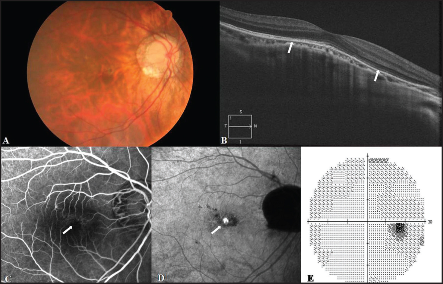 (A) Fundus photograph showing resolution of the white dots 2 weeks later. (B) OCT scan images revealing the spontaneous disappearance of subretinal fluid, with restoration of the inner segment/outer segment line of the photoreceptors (between the arrows). (C) The increased transmission was reduced but remained on fluorescein angiography (arrow). (D) Multiple hypofluorescent spots were decreased on indocyanine green angiography (arrow), and a hyperfluorescent spot was detected. (E) Resolution of the enlarged blind spot was observed in an automated visual field test.