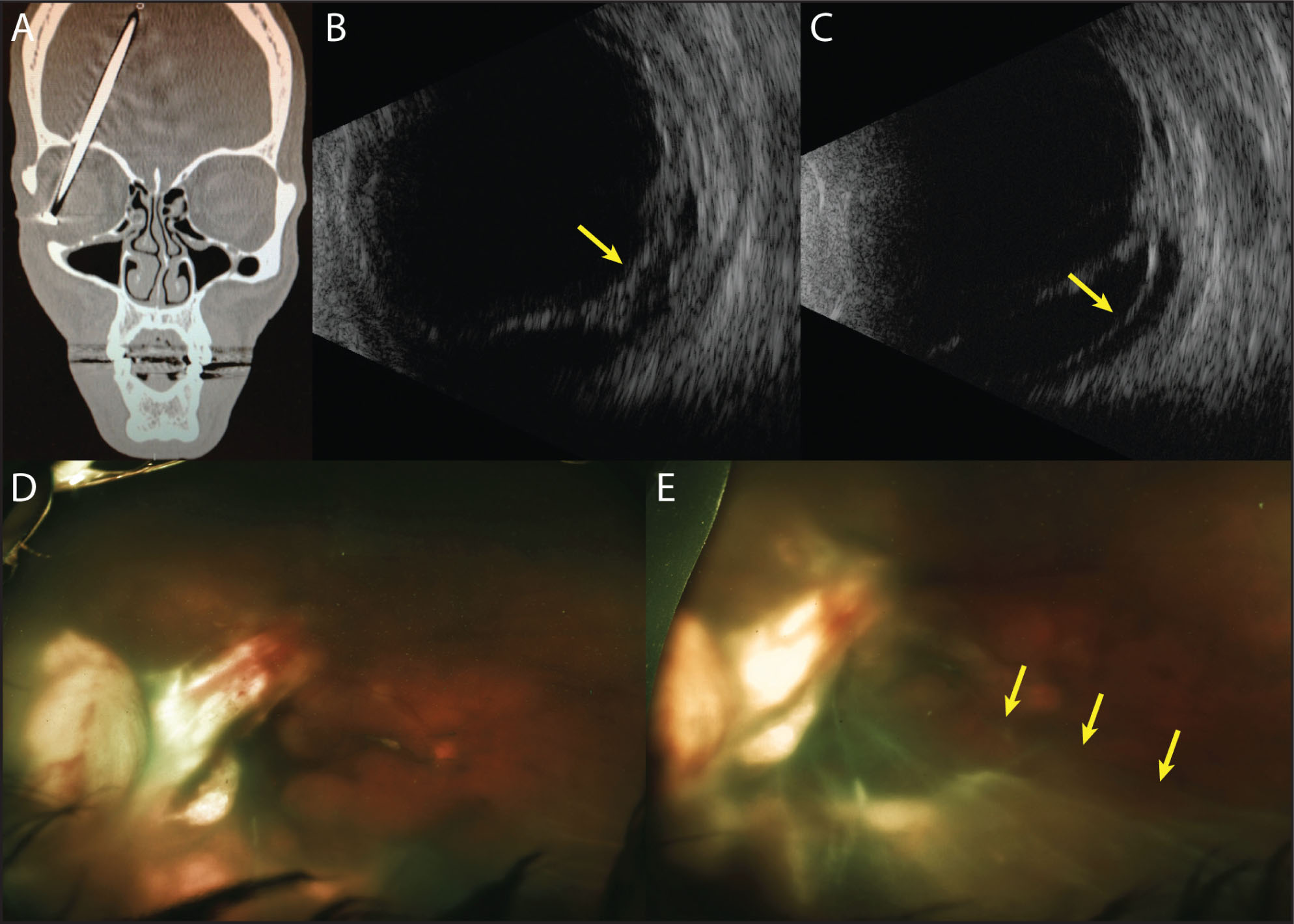 Case 1. (A) An orbital computed tomography scan without contrast showing an occult 8-cm nail from a nail gun, embedded in the right orbit without penetrating the globe, which extends through the orbital roof and into the frontal lobe. (B) Transverse B-scan ultrasonography of the temporal retinal periphery 1 week after presentation shows hyperacoustic membranes and vitreous hemorrhage (arrow) but no retinal detachment. (C) One week later, a retinal detachment is evident (arrow). (D) Optos (Dunfermline, United Kingdom) wide-field fundus photography at 1 week after presentation shows vitreous hemorrhage and traumatic chorioretinal rupture temporally. (E) Wide-field fundus photography 1 week later shows a new retinal detachment (arrows).