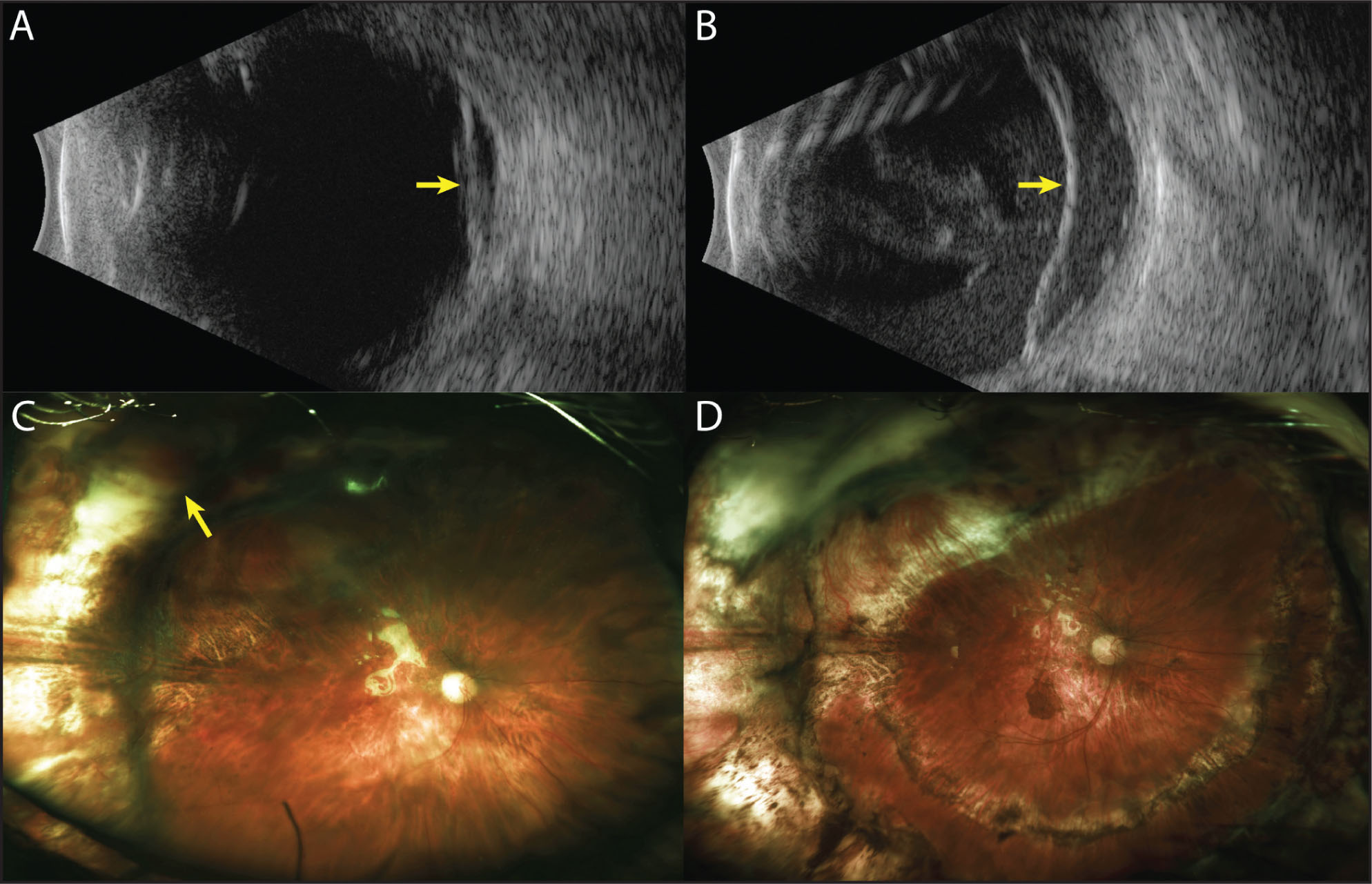 Case 3. (A) B-scan ultrasonography 2 days after the injury shows hyper-reflective material posteriorly (arrow), which on dynamic ultrasonography was most consistent with posterior hyaloid debris or hemorrhage. (B) A retinal detachment has developed 1 week subsequently (arrow). (C) Optos wide-field fundus photography 3 weeks after pars plana vitrectomy (PPV) with superior retinectomy and silicone oil tamponade in combination with a scleral buckle. The yellow arrow denotes the area of traumatic chorioretinal rupture. (D) Wide-field fundus photography 3 months after a repeat PPV with inferior retinectomy and silicone oil tamponade.
