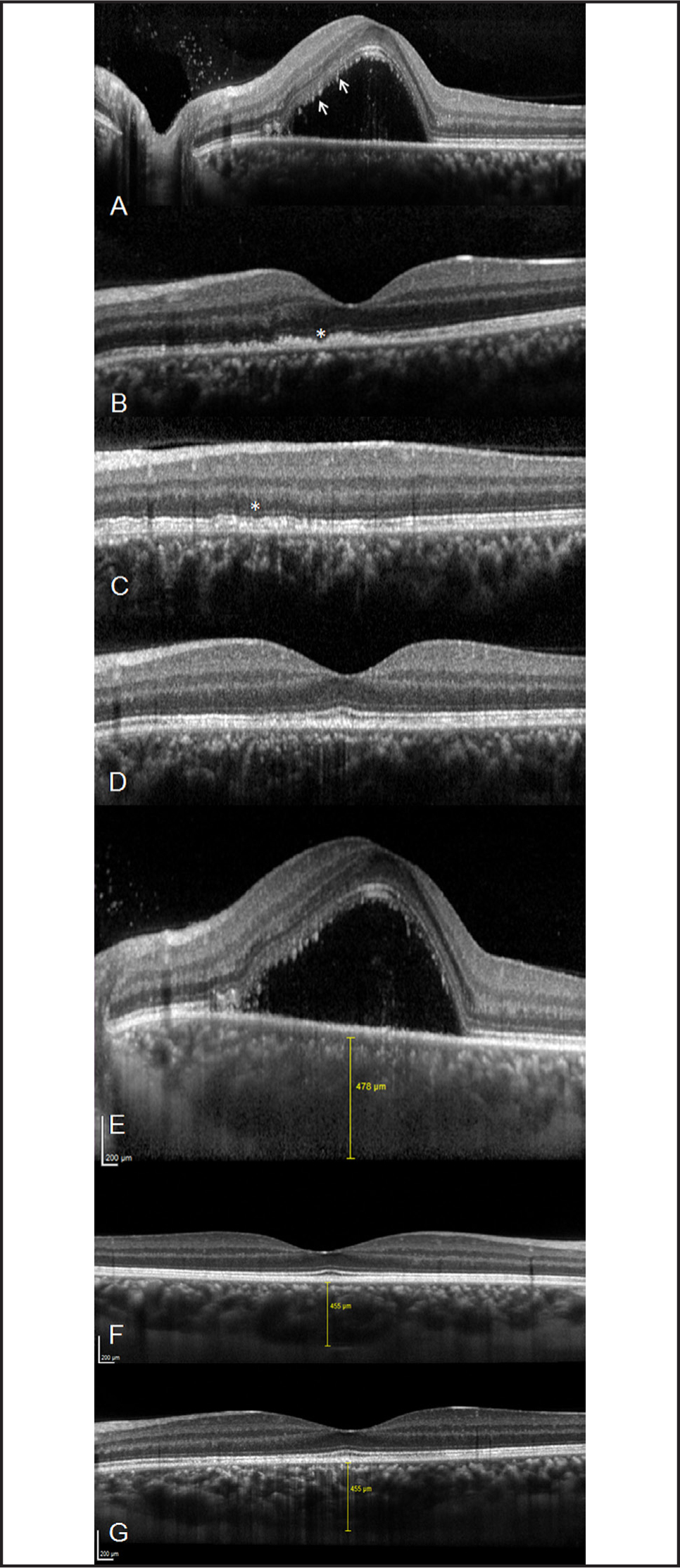 Spectral-domain OCT demonstrates neurosensory retinal detachment, with hyperreflective dots representing the outer segments of the photoreceptors (arrows) and preserved integrity of the external limiting membrane and inner retina at presentation (A). After 1 week: disruption at the level of photoreceptors (asterisk) (B). At 3-month follow-up: residual disturbance superonasally to the fovea (asterisk) (C), being the fovea reconstituted (D). Enhanced depth imaging OCT of the left eye at presentation demonstrated increased subfoveal choroidal thickness (E), which decreased at 3 months in the right (F) and left (G) eyes.