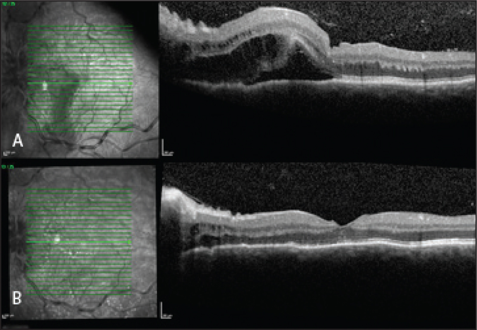 (A) Preoperative macular OCT demonstrating intraretinal and subretinal fluid extending from the optic nerve with foveal detachment. (B) Postoperative OCT with resolution of fluid and improvement in foveal contour.