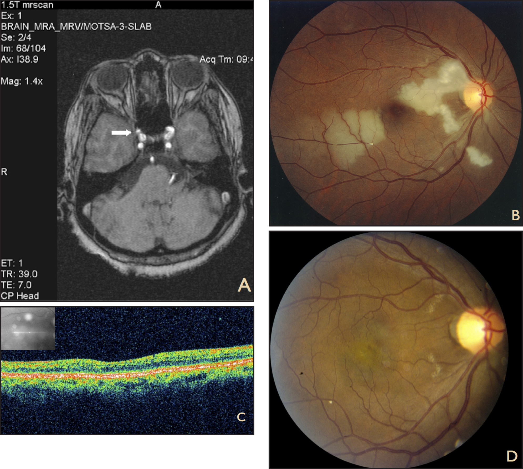 (A) MRI/MRA of the brain demonstrating right-sided paraclinoid aneurysm (white arrow). (B) Right fundus photograph with multiple branch retinal arteriolar occlusions with visible Hollenhorst plaques and peripapillary cotton-wool spots. (C) Time-domain OCT of the right macula with inner retinal thinning. (D) Right fundus photograph 8 months after presentation with fine residual lipid exudates nasal to macula and resolved retinal whitening. Note persistent Hollenhorst plaque at inferior arcade.