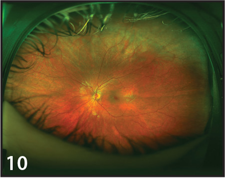 Ultra-widefield image demonstrating the greater extent of peripheral retina compared to the suboptimal clinical examination. Patient was 5 years old at the time and had a small, poorly dilated pupil.