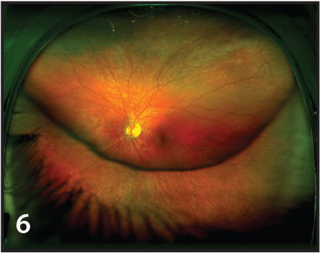 Ultra-widefield image demonstrating subluxed lens. This patient was 7 years old at the time of imaging.