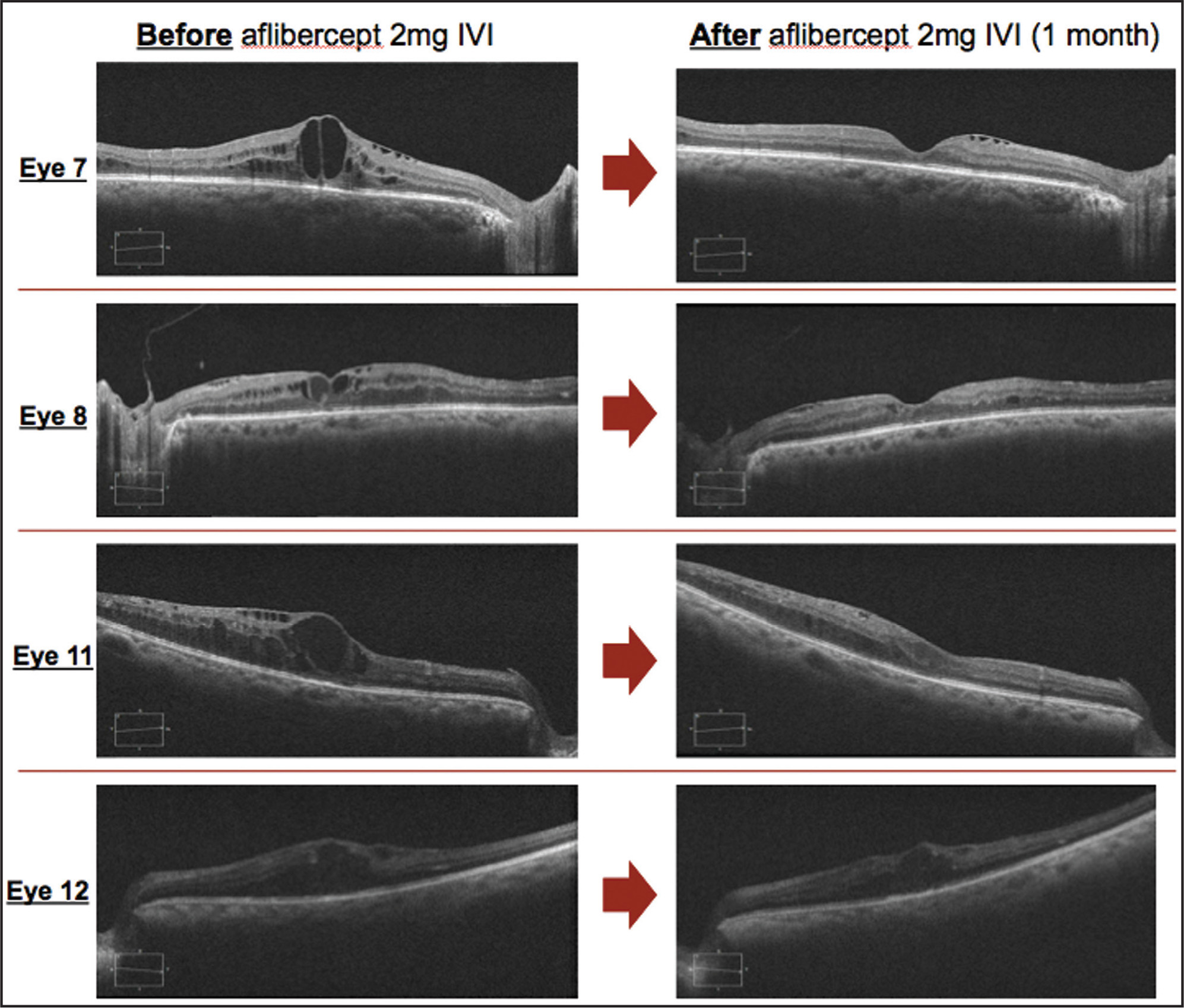 Improved diabetic macular edema as seen with spectral-domain optical coherence tomography after aflibercept injection.