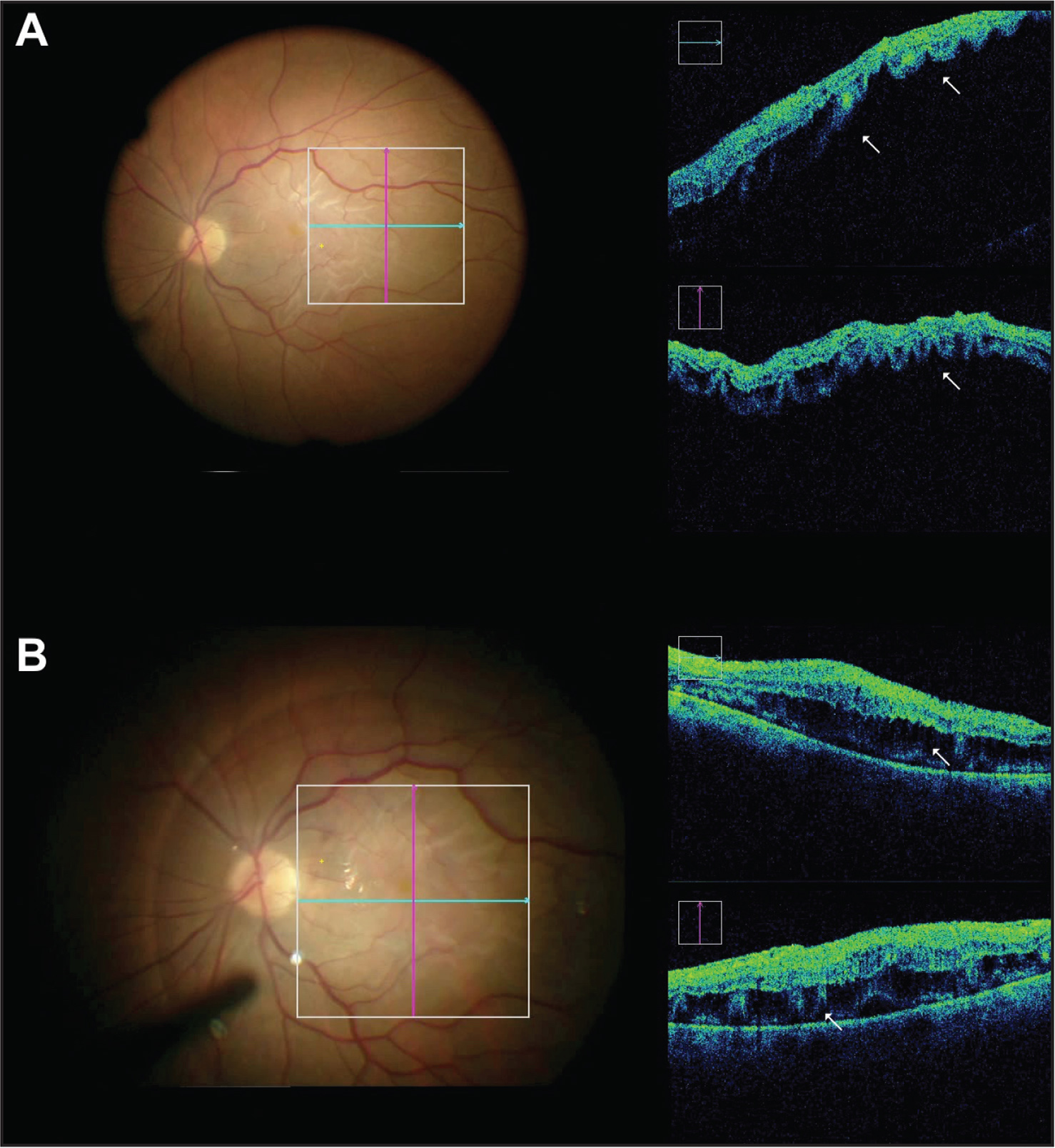 Immediate detection of macula-on or -off situation during surgery. (A) Accordion-shaped microarchitectural alteration of the outer layers of the retina and retinal edema. (B) The microarchitectural alteration persists after reattachment of the retina.