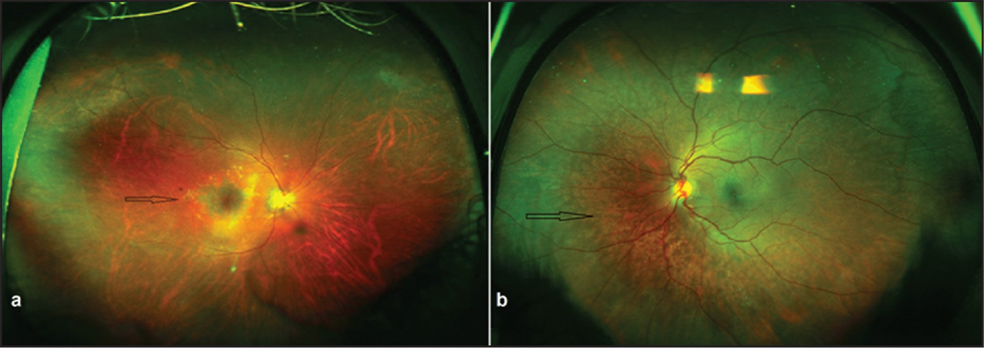 UWF retinal color imaging (Optos 200Tx) of patient 32 (right eye), a 61-year-old woman. The Optos image was taken 41 days after an uneventful cataract extraction surgery. Note the macular dystrophy (black arrow). A similar symmetric pathology was found in the fellow eye. The patient was referred for further evaluation by a retina specialist.