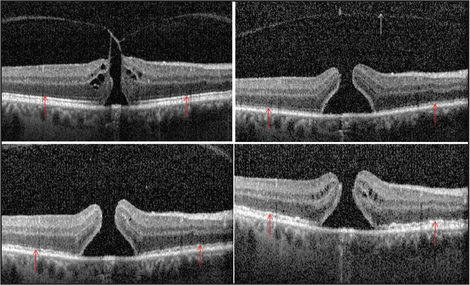 Patient 5. Sixty-four-year-old phakic man with vitreomacular traction and macular hole. At baseline (top left), the images show intact photoreceptor inner segment/outer segment/ellipsoid layer (red arrows). One week after treatment (top right), OCT highlights marked changes in the inner segment/outer segment/ellipsoid layer, showing complete disruption throughout the scan (red arrows). Note that the vitreomacular traction has released (white arrow). Two weeks after treatment (bottom left), the changes in that layer were still evident (red arrows). Five weeks after treatment (bottom right), OCT shows some recovery of the inner segment/outer segment/ellipsoid layer, although it still presents marked irregularity (red arrows).