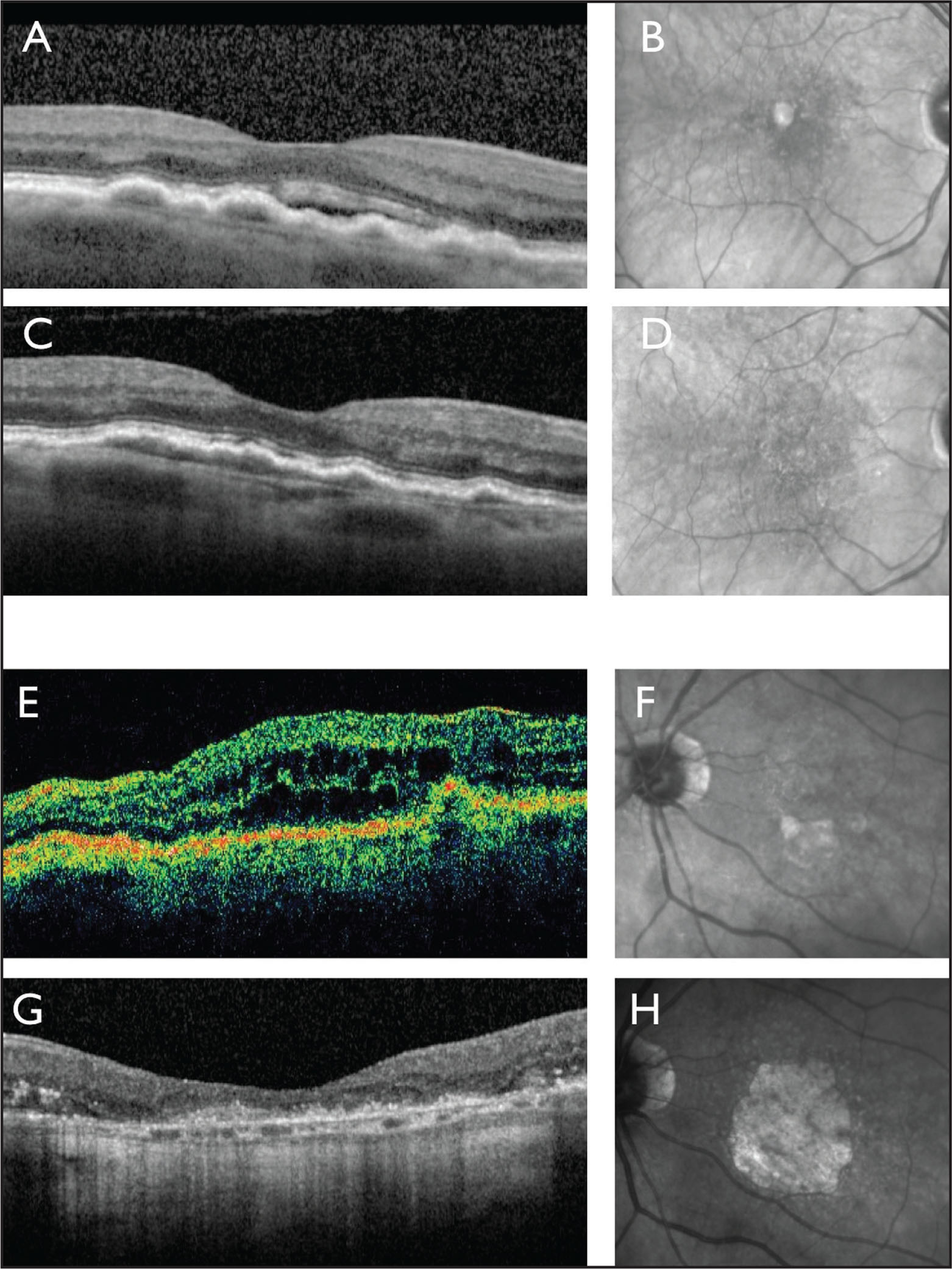 SD-OCT (A) and near-infrared reflectance (NIR) image (B) show the right eye of an 80-year-old woman with newly symptomatic type 1 neovascularization. A treat-and-extend regimen with a 4- to 6-week injection interval was initiated. SD-OCT (C) and NIR image (D) 5 years later and after 41 intravitreal injections of ranibizumab show persistence of type 1 neovascularization but no evidence of geographic atrophy. Vision remains stable at 20/50. Time-domain OCT (E) and NIR image (F) show the left eye of an 87-year-old man with newly symptomatic type 3 neo-vascularization. A treat-and-extend regimen with a 5- to 6-week injection interval was initiated. SD-OCT (G) and NIR image (H) 5 years later and after 45 intravitreal injections of ranibizumab show extensive geographic atrophy. Vision has deteriorated to 20/400.