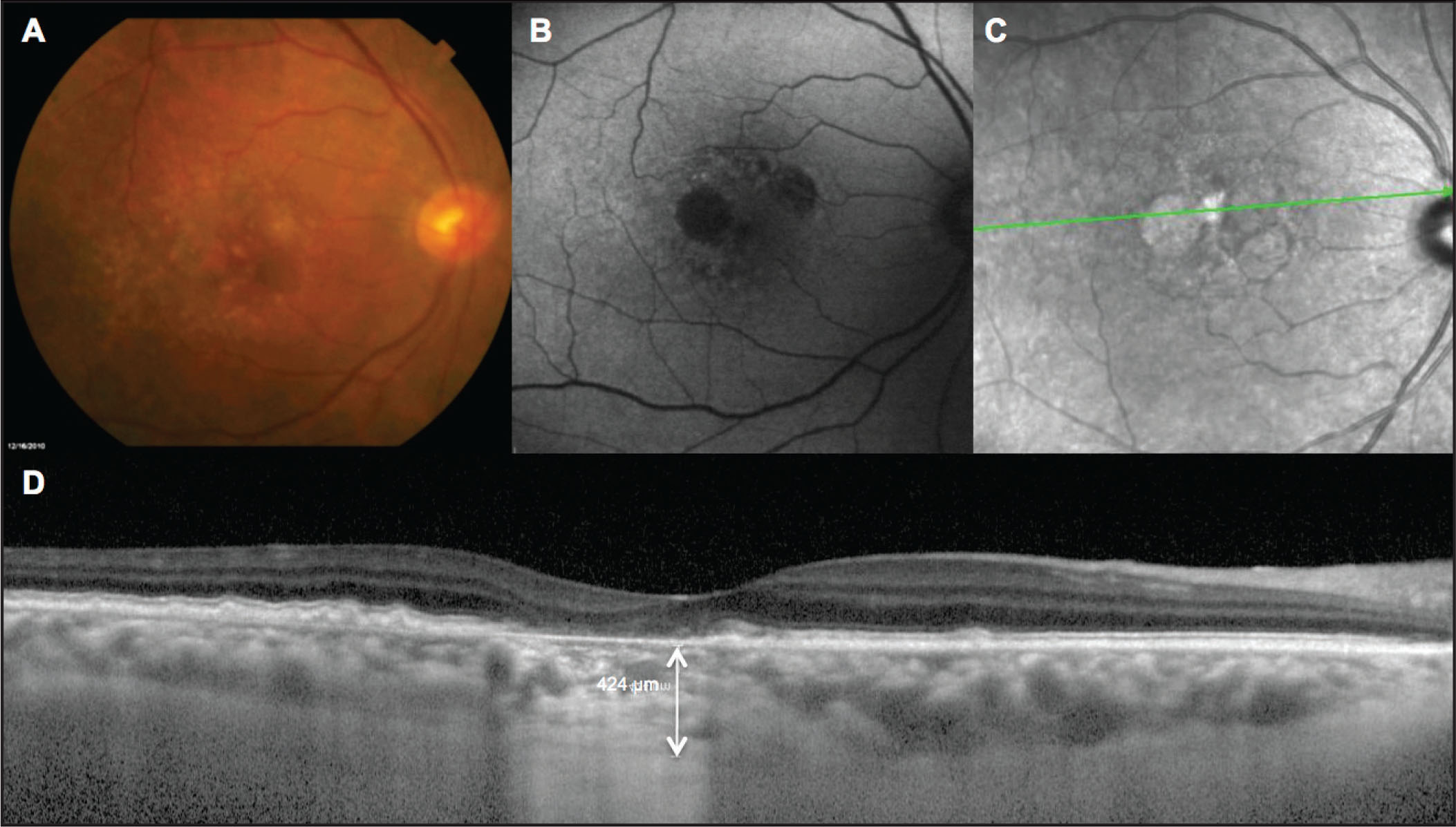 Choroidal thickness (CT) measurement of age-related macular degeneration eye with geographic atrophy in the absence of reticular pseudodrusen in the right eye of a 74-year-old woman. (A) Color fundus image. (B) Fundus autofluorescence image. (C) Infrared reflectance image. (D) Spectral-domain OCT horizontal B-scan with subfoveal CT measurement corresponding to 424 µm.