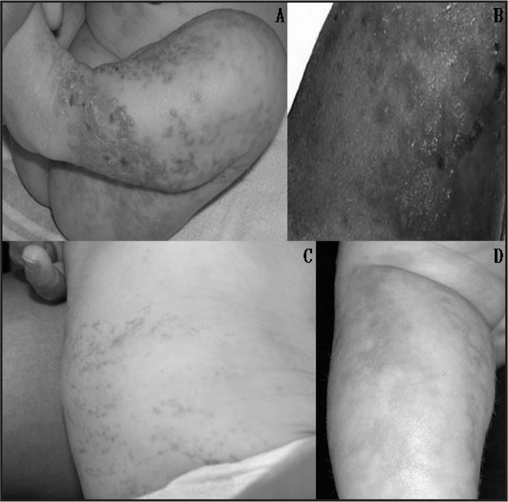 Dermatologic lesions of incontinentia pigmenti. (A) Stage 1, vesicular stage, with marked erythema with linear vesicles, bullae, and pustules. (B) Stage 2, verrucous stage, with wart-like verrucous papules and keratotic patches. (C) Stage 3, hyperpigmented stage, with swirling or whirling macular patches of hyperpigmentation. (D) Stage 4, hypopigmented stage, with patchy areas of hypopigmentation, usually arranged in streaks or whorls. (Source: www.dermaamin.com; used with written permission from Dr. Jehad Ali.)